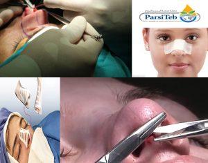 عملية جراحة تجميل الأنف-مراحل عملية جراحة الأنف-مراحل عملية تجميل الأنف