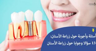 أسئلة وأجوبة حول زراعة الأسنان: 13 سؤالا وجوابا حول زراعة الأسنان