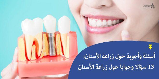 13سؤالا وجوابا حول زراعة الأسنان-أسئلة وأجوبة حول زراعة الأسنان