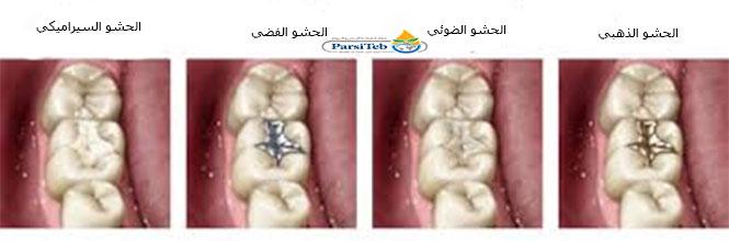 حشو الأسنان-أنواع الحشوة