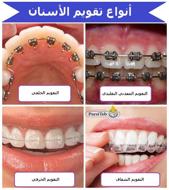 انواع تقويم الأسنان