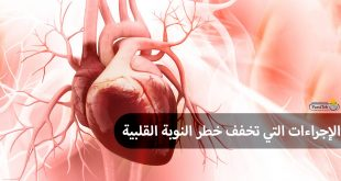 إجراءات تخفف خطر النوبة القلبية