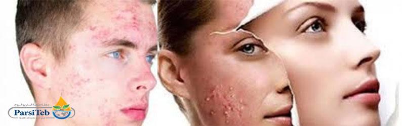 آثار الإجهاد والتوتر في الوجه(المظهر)-حب الشباب والمسامات المسدودة