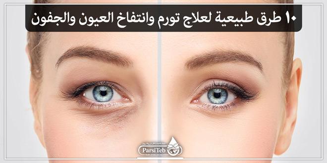 10 طرق طبيعية لعلاج تورم وانتفاخ العيون والجفون