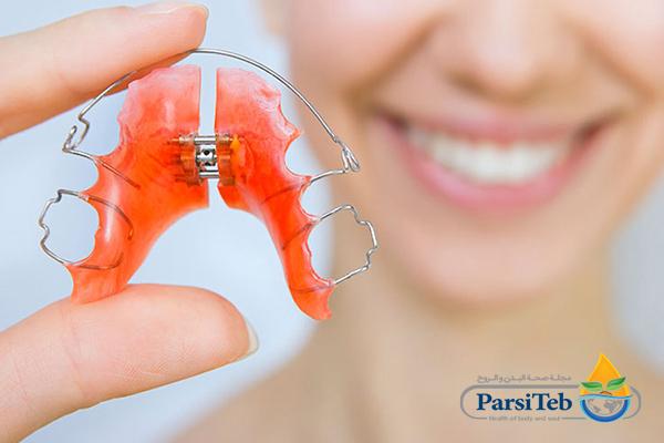 تقويم الأسنان المتحرك
