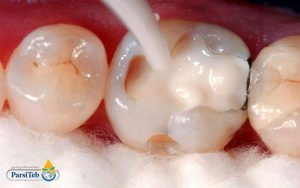 حشو الأسنان