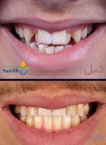 قبل وبعد تقويم الأسنان