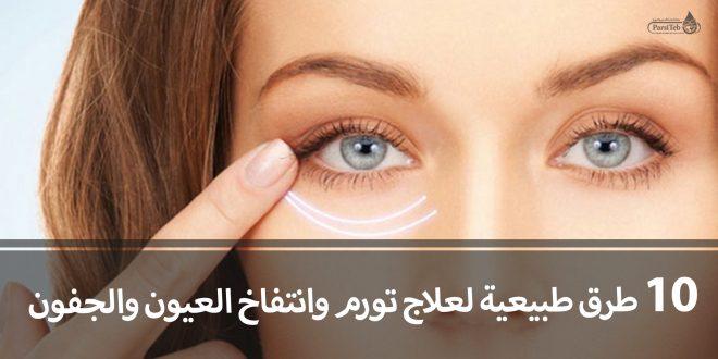 10طرق طبيعية لعلاج انتفاخ وتورم العيون والجفون