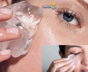 10 طرق طبيعية لعلاج تورم وانتفاخ العيون والجفون-الثلج
