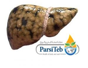 20 معلومة مهمة عن الكبد الدهني-تدهن الكبد