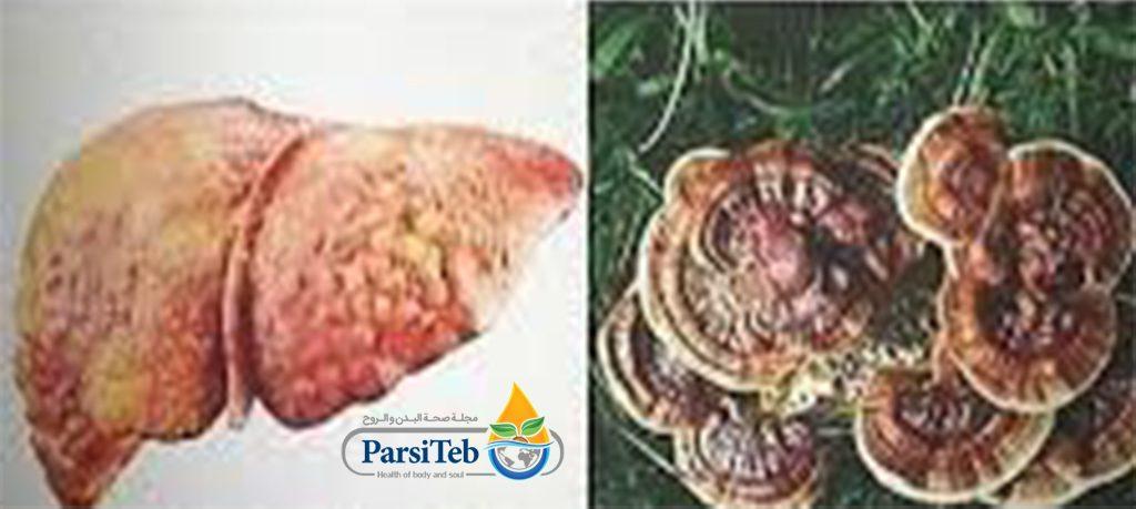 الجانوديرما والكبد الدهني-الغانوديرما والكبد الدهني