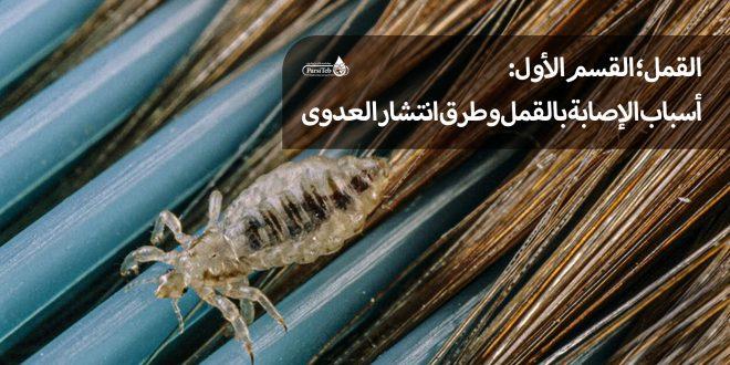 القمل وأسباب انتشاره- القضاء على القمل والصيبان