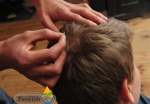 أسباب الإصابة بالقمل وطرق انتشار العدوى-إفرازات الرأس-