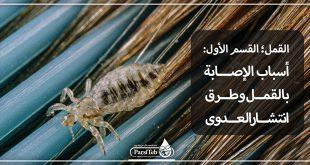 القمل؛ الإصابة وطرق انتشار العدوى