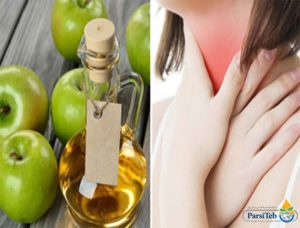 خل التفاح وآلام الحلق-خل التفاح وعلاج الزكام