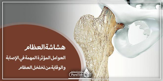 هشاشة العظام؛ العوامل المؤثرة في الإصابة والوقاية من تخلخل العظام