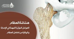 هشاشة العظام وأهم العوامل المؤثرة في الإصابة والوقاية من تخلخل العظام