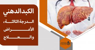 علاج الكبد الدهني الدرجة الثالثة