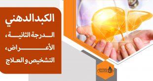 الكبد الدهني الدرجة الثانية؛ الأعراض، التشخيص والعلاج