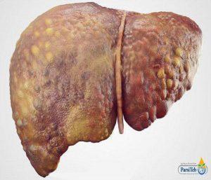 الكبد الدهني في مراحله المتقدمة