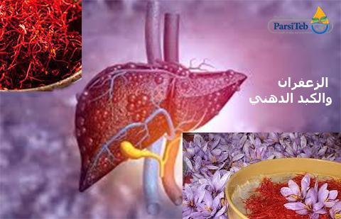 الزعفران لعلاج الكبد الدهني