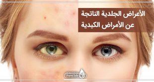 الأعراض الجلدية الناتجة عن الأمراض الكبدية