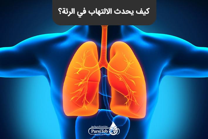 كيف يحدث الالتهاب في الرئة؟