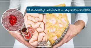مضاعفات الإمساك تؤدي إلى سرطان البنكرياس في طويل المدى