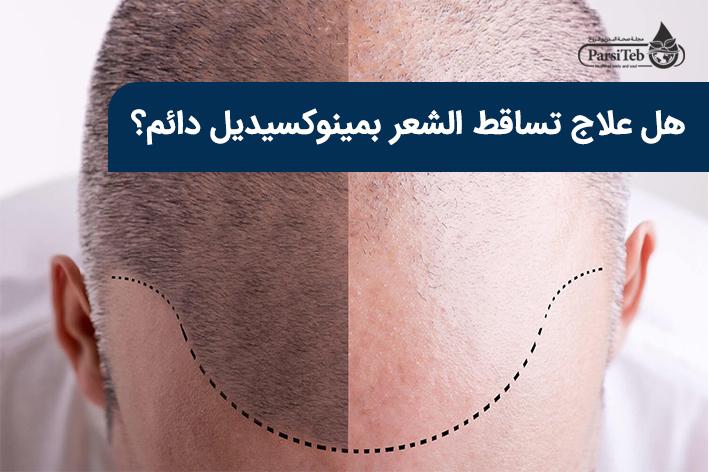 هل علاج تساقط الشعر بمينوكسيديل دائم؟-المينوكسيديل وعلاج تساقط الشعر