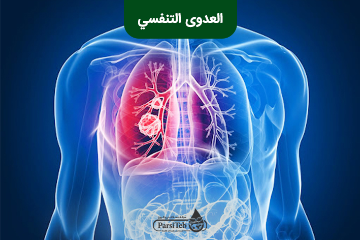 العدوى التنفسي