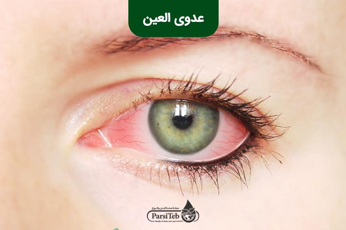 عدوى العين