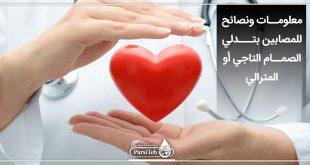 نصائح للمصابين بتدلي الصمام التاجي في القلب-تدلي الصمام المترالي