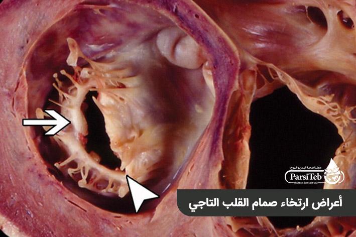 أعراض ارتخاء الصمام الميترالي