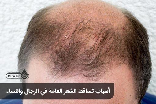 أسباب تساقط الشعر العامة في الرجال والنساء