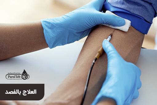 العلاج بالفصد والطب الإسلامي
