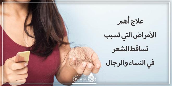 أهم أسباب تساقط الشعر في النساء والرجال