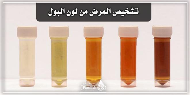 تشخيص المرض من لون البول