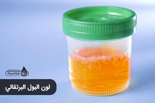 لون البول البرتقالي