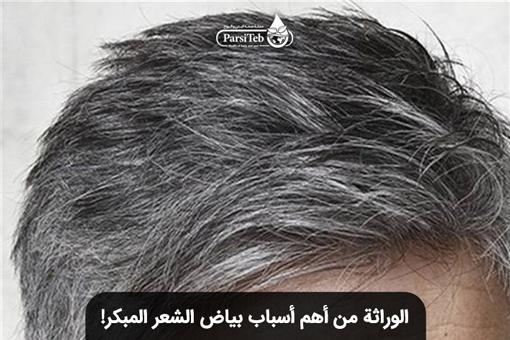 الوراثة وبياض الشعر المبكر