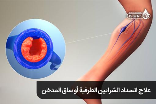 علاج انسداد الشرايين الطرفية أو ساق المدخن