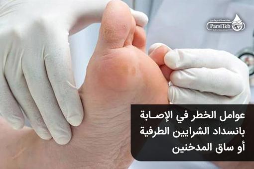 عوامل الخطر في الإصابة بانسداد الشرايين الطرفية أو ساق المدخنين